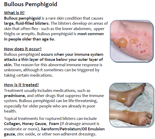 Bollous Pemphigoid